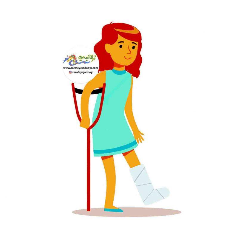 پای شکسته کودک - کودکی که دست یا پایش را گچ گرفته
