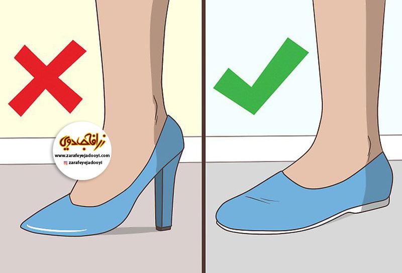 زرافه-جادویی-درمان-خانگی-ورم-پا-در-دوران-بارداری-کفش-راحتی-بپوشید.