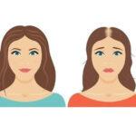 زرافه-جادویی-ریزش-مو-در-بارداری-و-پس-از-زایمان